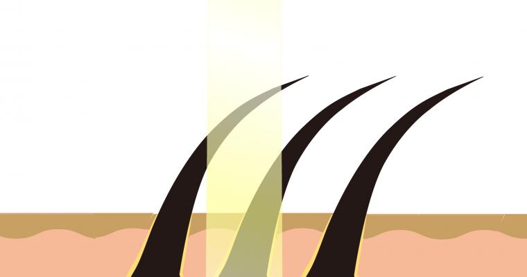 現在の男のヒゲ脱毛の主流「メンズレーザー脱毛」についてプロが解説